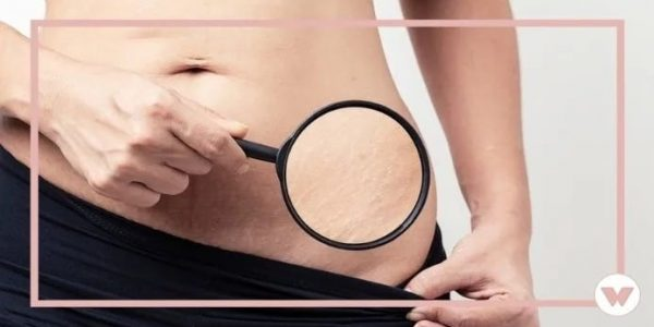 Stretch Mark Creams That Give the Longest-Lasting Results in 2021